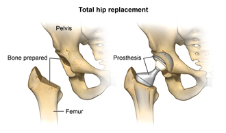 Total hip replacement showing the pelvis, bone prepared, femur and prosthesis